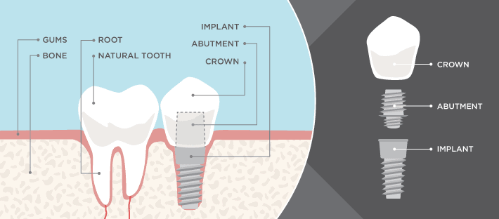 Dental Diagram Tobin Dental Care